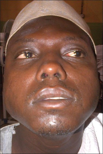 Hot unilateral facial palsy