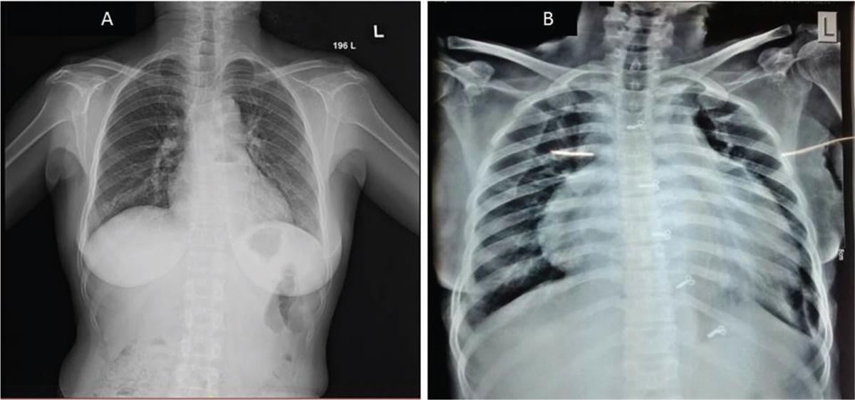 Pyopericardium − A fatal presentation: A case report Raju